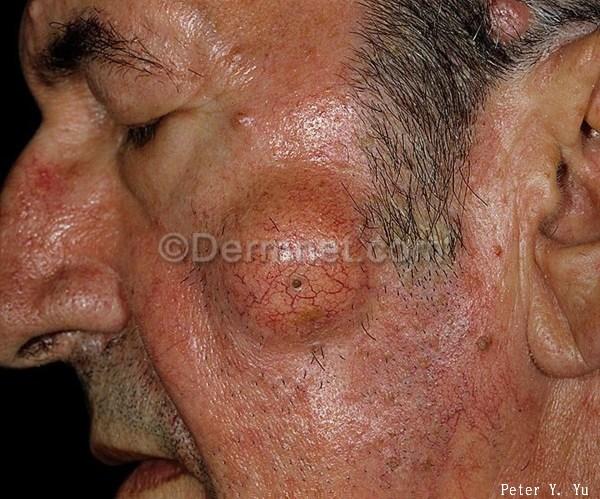 粉 瘤 体質