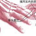 痛風gout)是現代人常見的文明病之一,臨床上是屬於風濕病的一種。因急性發作,疼痛一來勢如疾風,因而得名