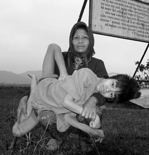 55歲母親闞雷和她懷裡14歲精神和身體嚴重殘疾的兒子。2002年因受橙劑污染,越南大約有10萬名先天殘疾兒童。引自wiki橙劑